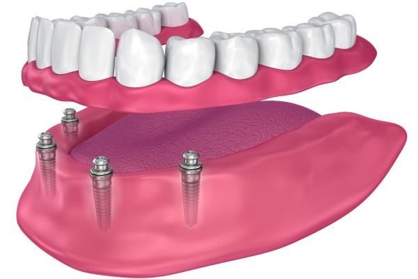 Riabilitazione implantoprotesica removibile
