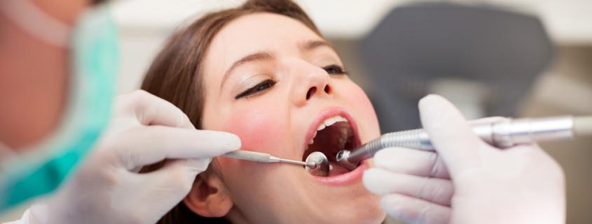 Carie dentali otturazione